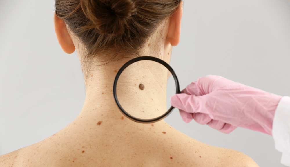 Best Mole Removal Reviews