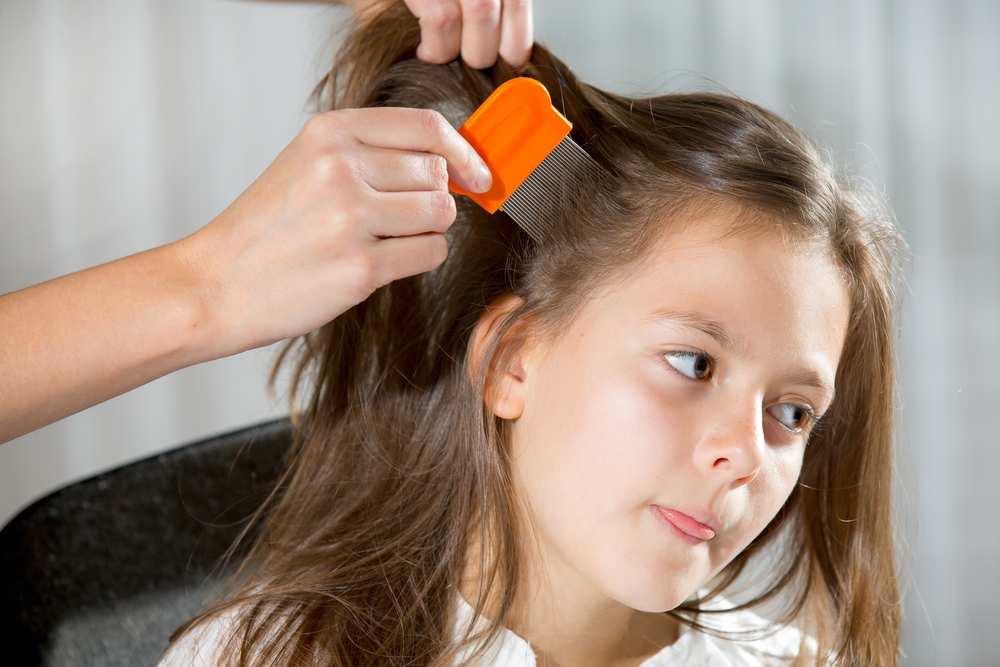 Lav Does Hair Dye Kill Lice